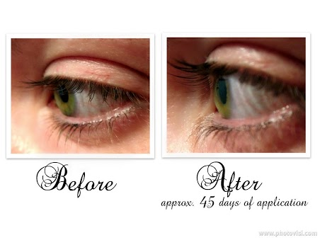 Before And After Latisse® Eyelash Treatment