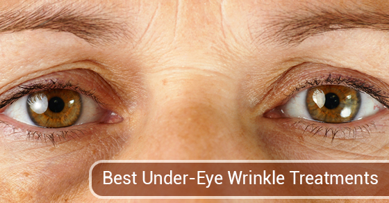 Best Under-Eye Wrinkle Treatments