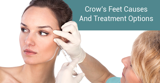 Crow's Feet Causes And Treatment Options