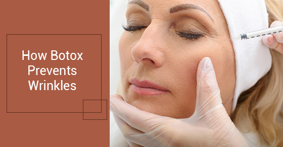 How Botox Prevents Wrinkles